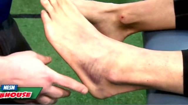 The Baseball Lab: How To Treat A Sprained Ankle